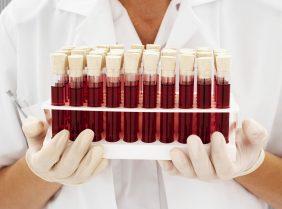 Диета для I группы крови: худеем раз и навсегда!