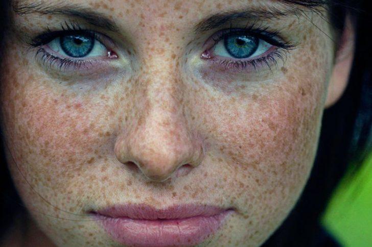 Домашние маски от пигментных пятен на лице — действенные способы удаления и отбеливания пигментных пятен