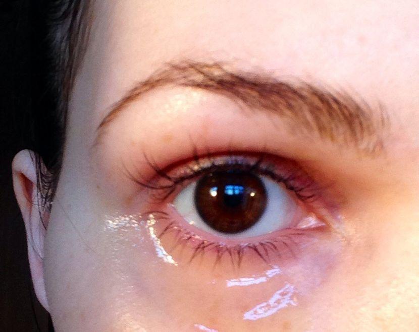 Применение витамина Е для кожи вокруг глаз