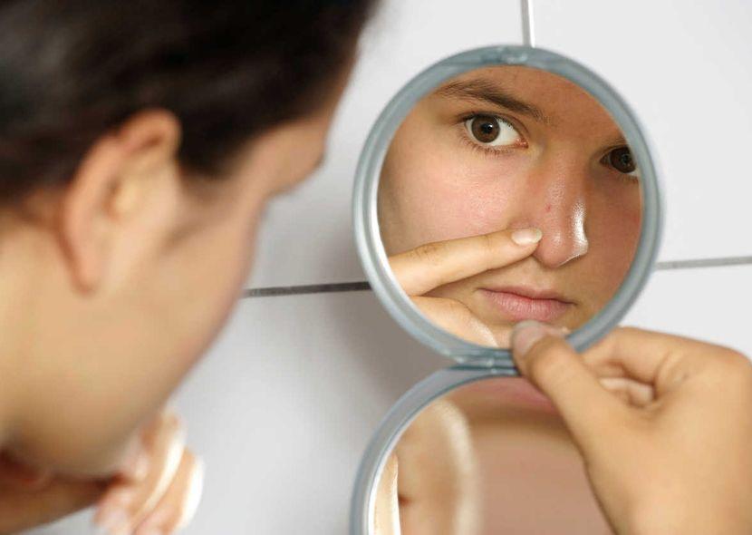 Убираем черные точки на носу: маски и средства против черных точек