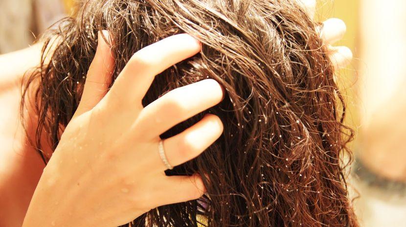Как правильно делать массаж головы для стимуляции роста волос?