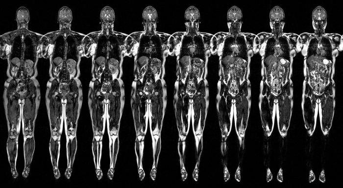 mrt-vnutrennih-organov