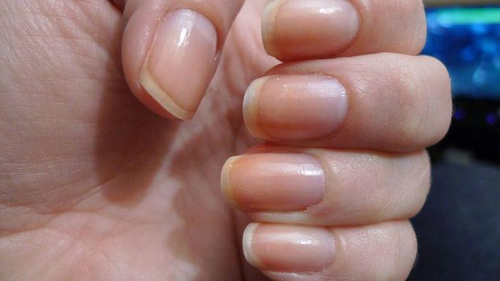 Диагностика по желтым ногтям