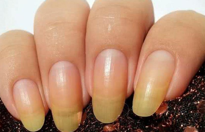 Причина ломкости ногтей