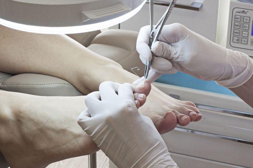 Симптомы вросшего ногтя