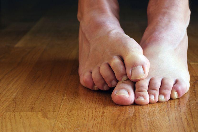 Симптомы грибкового поражения стоп