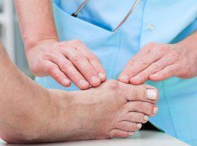 Нарост на пальце ноги