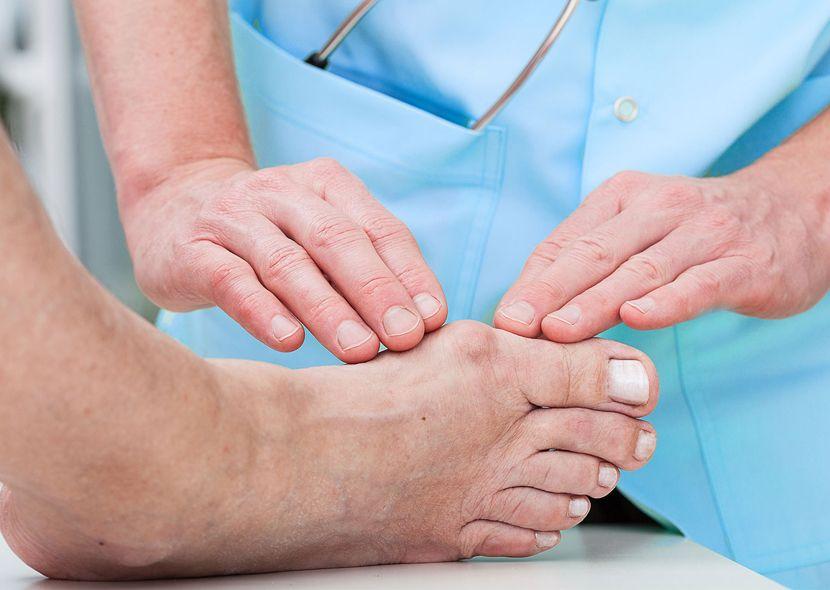 Нарост на большом пальце ноги: как убрать нарост на втором пальце