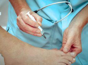 Как лечить наросты на ногах?