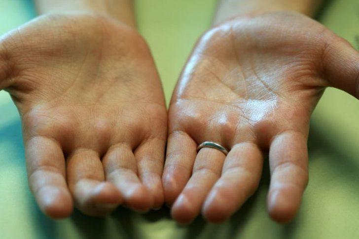 Почему потеют ладони рук и что с этим делать?