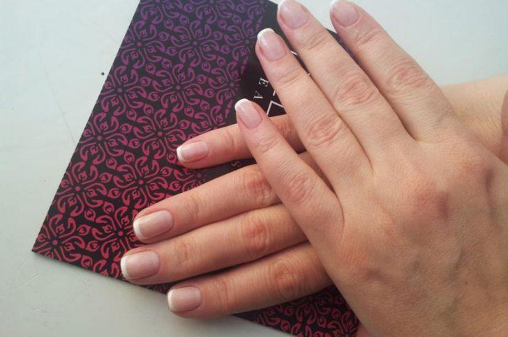 Причины появления синяков на руках