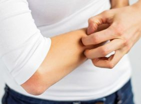 Лечение сыпи на руках