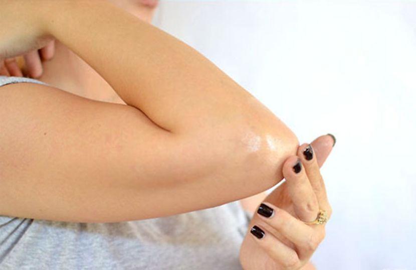 Увлажнение кожи локтей