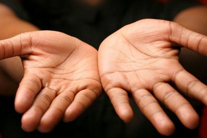 Почему на руках появляются наросты?