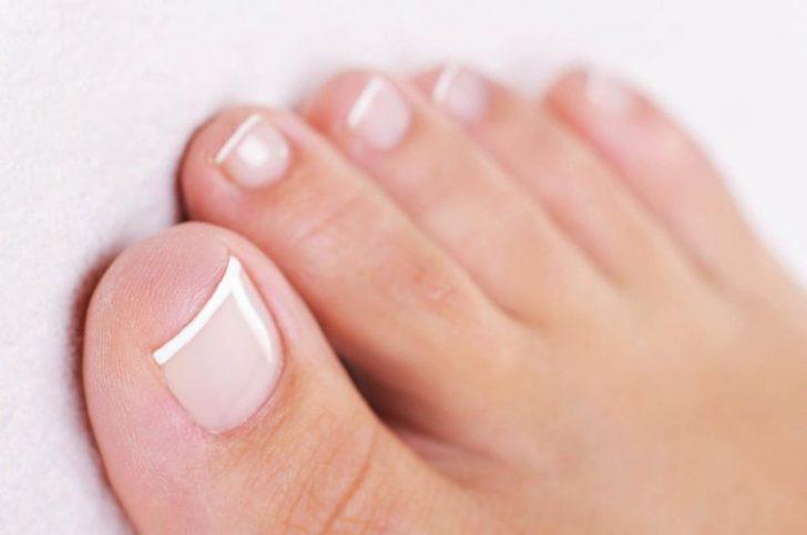 почему ногти на ногах краснеют