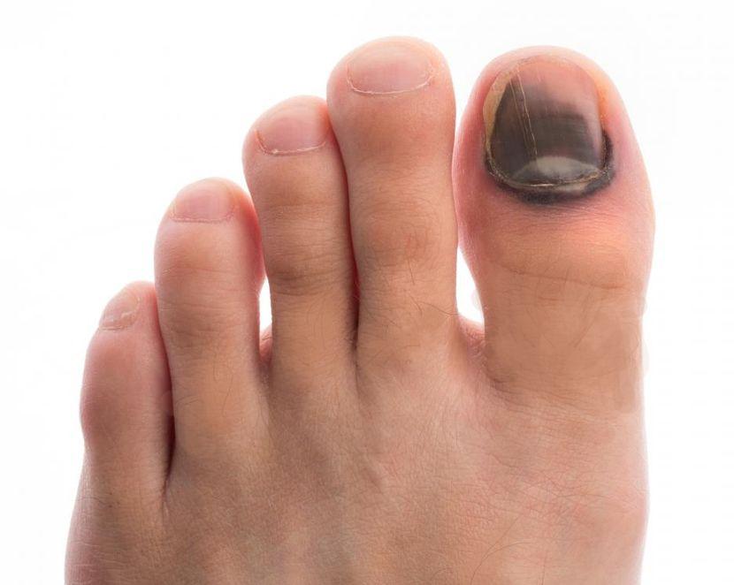 Причины – почему синеют ногти