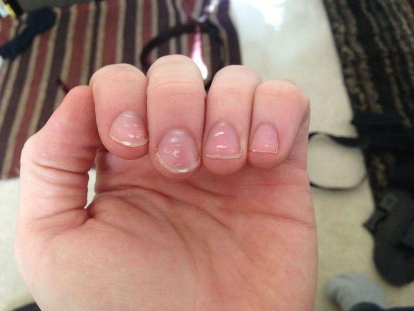Причины белых пятен на ногтях