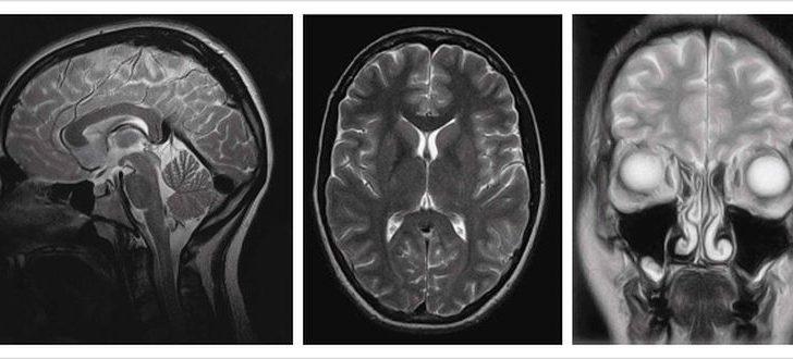 Как делают МРТ головного мозга и зачем?