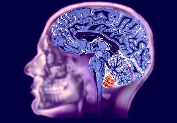 мрт головного мозга в спб адреса и цены