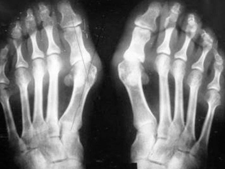 Диагностика и симптоматика вальгусной деформации большого пальца