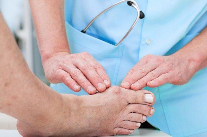 Вальгусная деформация большого пальца стопы: причины, симптомы, лечение
