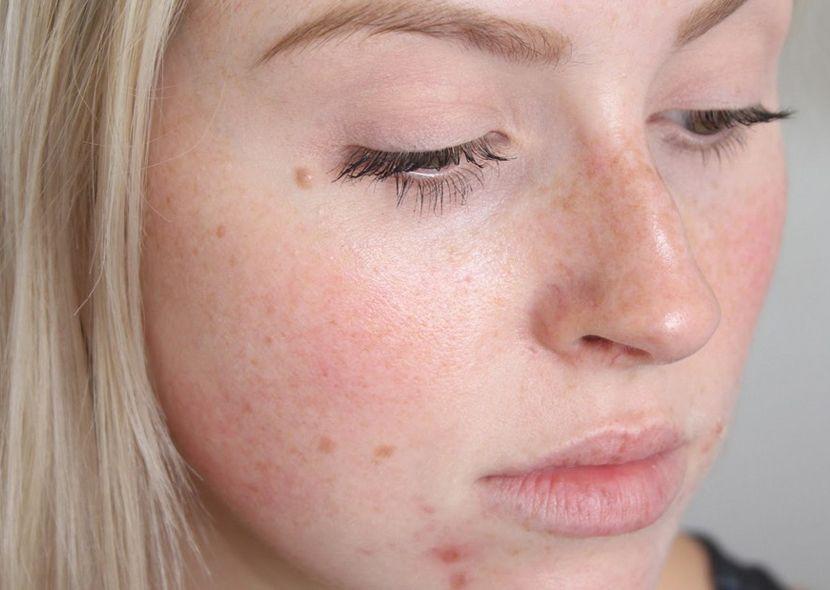 Витамины от прыщей и угрей на лице