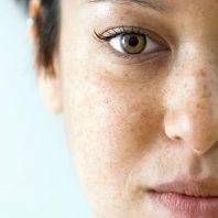 Если сухая кожа — каких витаминов не хватает организму?