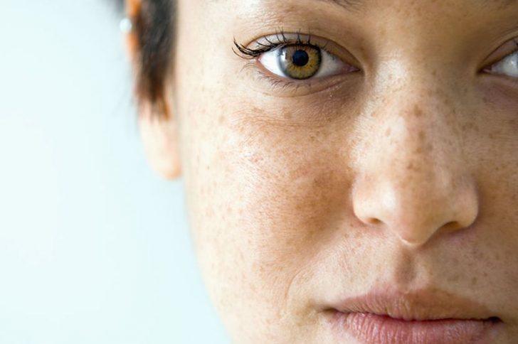 Сухая кожа тела выпадают волосы
