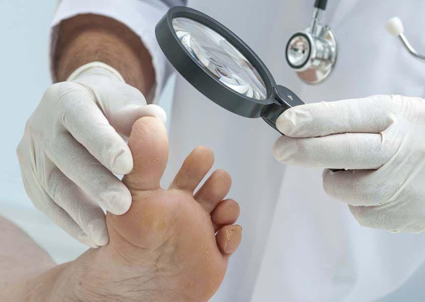 Эффективное лечение грибка ногтя (запущенная форма): препараты, способы и отзывы