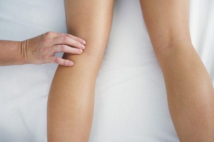 Варикозное расширение вен: симптомы и лечение