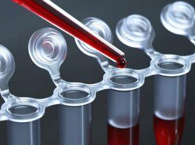 Витамины для крови: что нужно нашему организму?