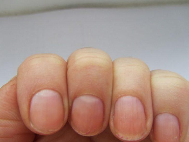 Стали плоскими ногти