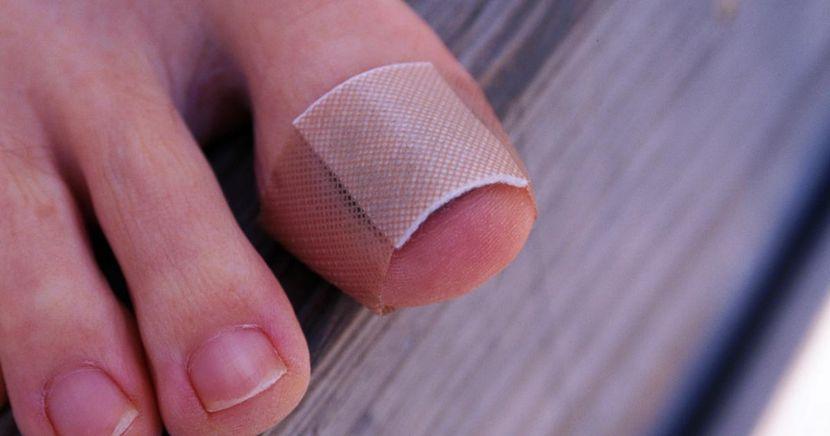 Травма ногтя на большом пальце ноги: что делать?