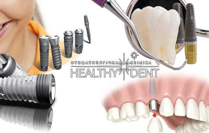 Этапы имплантации зубов: как создается идеальная улыбка