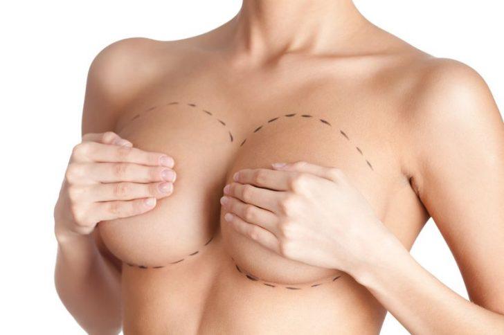 Увеличение и пластика груди от профессионалов