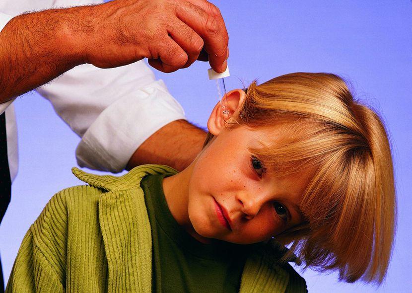 Как правильно закапывать уши? Правила применения ушных капель!