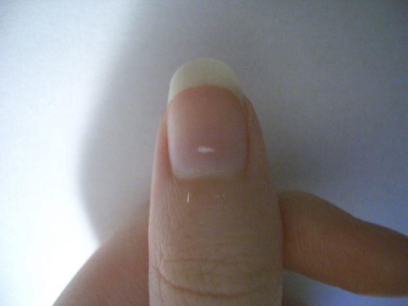 О чем «говорят» мелкие белые пятна на ногтях?