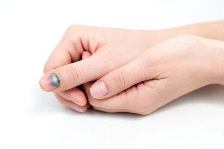 Черные ногти на руках: причины появления черных полос
