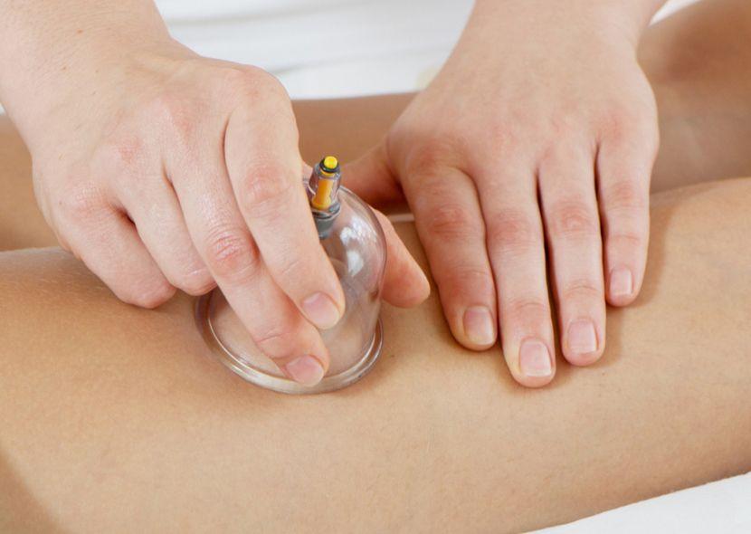 Баночный массаж от целлюлита в домашних условиях: техника выполнения