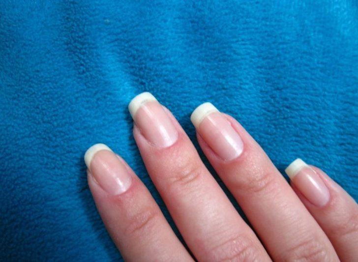 Побелели ногти: почему и что с этим делать?