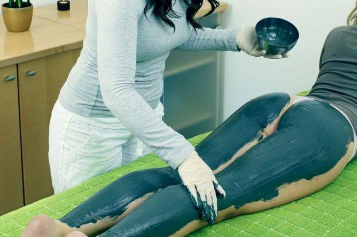 Глина от варикоза: методы лечения