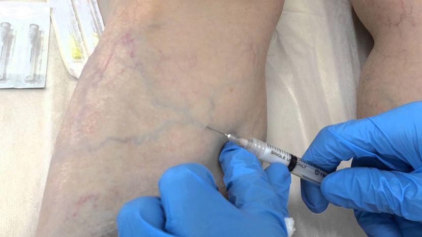 Склеротерапия при варикозе: показания и противопоказания