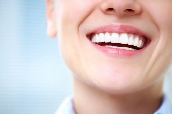 Средства для отбеливания зубов в домашних условиях