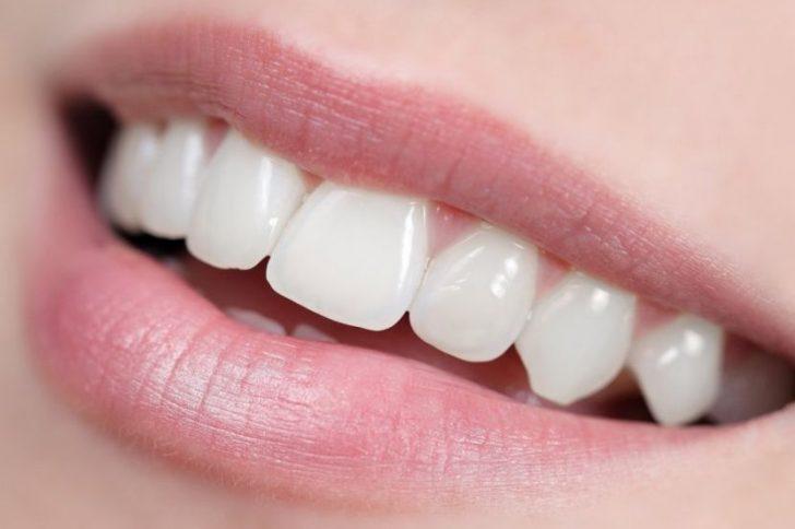 Народные рецепты отбеливания зубов в домашних условиях