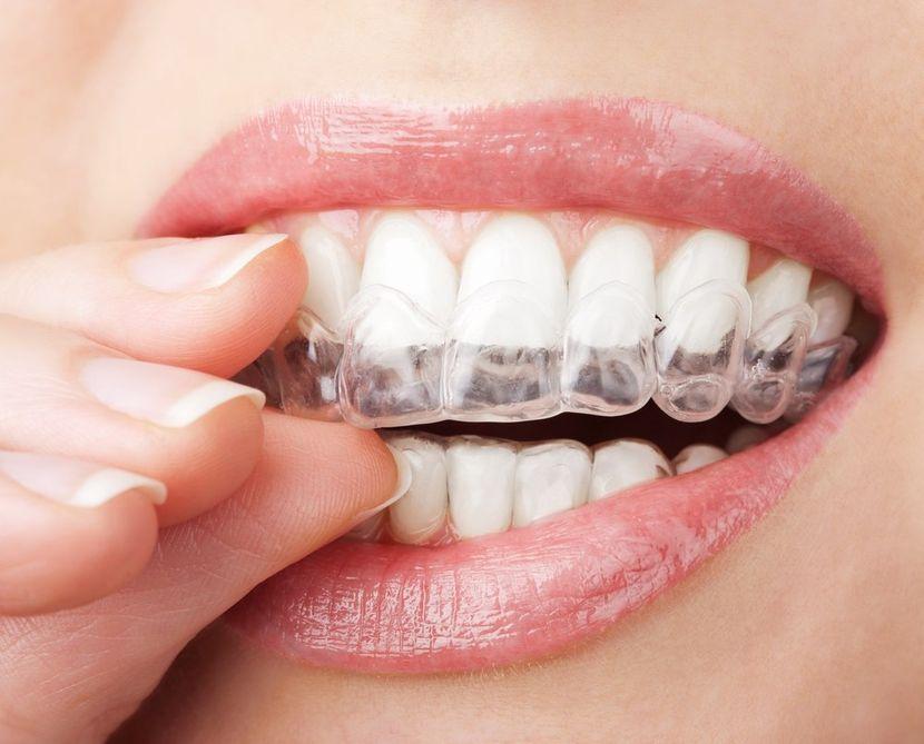 Как происходит отбеливание зубов при помощи кап?