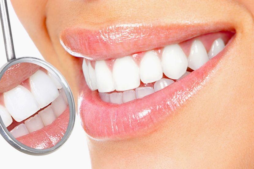 Карандаш для отбеливания зубов: преимущества применения