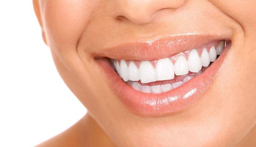 Недостатки применения полосок для отбеливания зубов