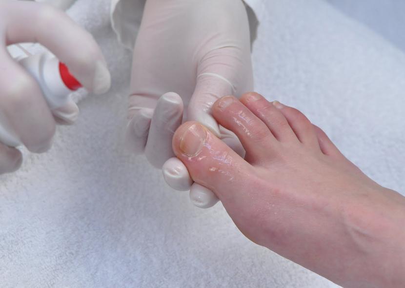Лечение вросшего ногтя хозяйственным мылом