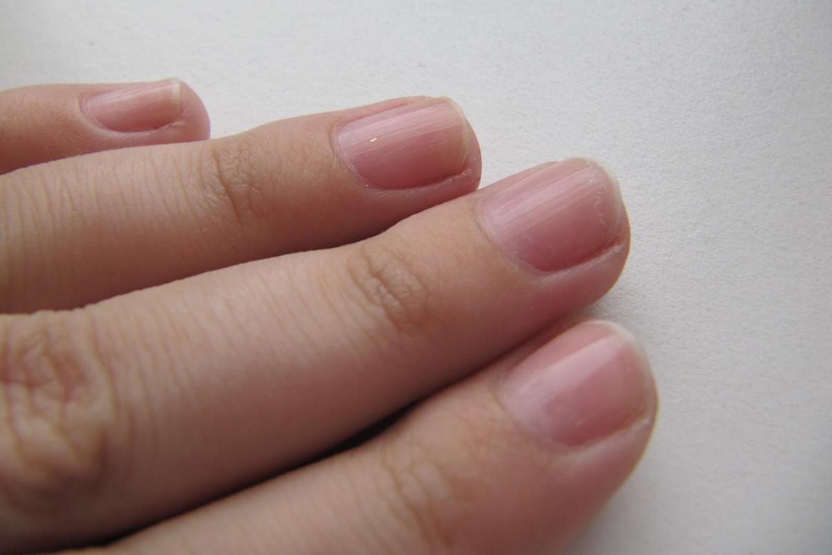 Особенности применения лака «Лоцерил» для ногтей