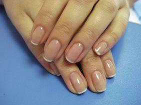 Псориаз ногтей: симптомы и лечение народными средствами в домашних условиях